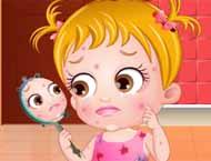 Baby Hazel Tem Problema de Pele