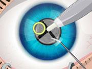 Cirurgia nos Olhos